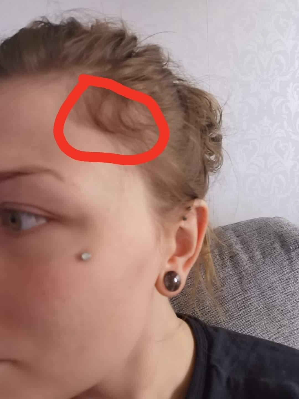 hårkontroll resultat före efter